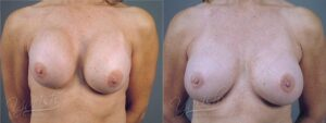 Patient 9 Breast Revision Before and After Front View