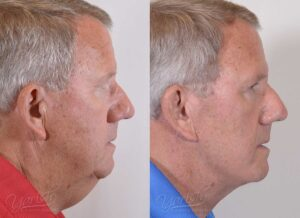 Patient 10 Face Lift and Neck Lift Before and After Right Side View