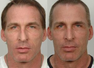 Patient 14 Rhinoplasty Before and After Front View