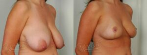 Patient 8 Breast Lift Before and After Right Oblique View
