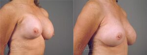 Patient 9 Breast Revision Before and After Right Oblique View