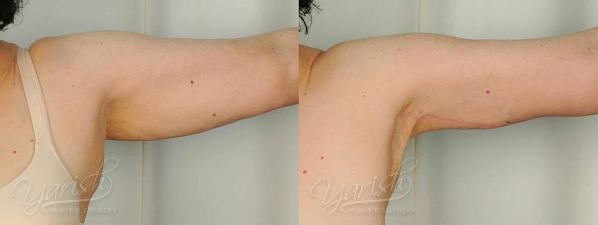 Patient 10 Brachioplasty Before and After Photo