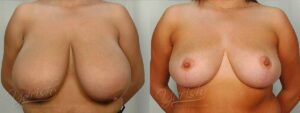Patient 4 Breast Reduction Before and After Front View