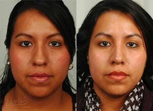 Patient 7 Rhinoplasty Before and After Front View