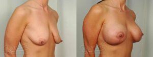 Patient 10 Breast Augmentation with Mastopexy Before and After Right Oblique View