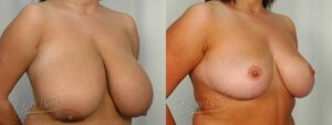 Patient 4 Breast Reduction Before and After Right Oblique View