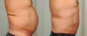 Patient 9 Male Liposuction Before and After Right Side View