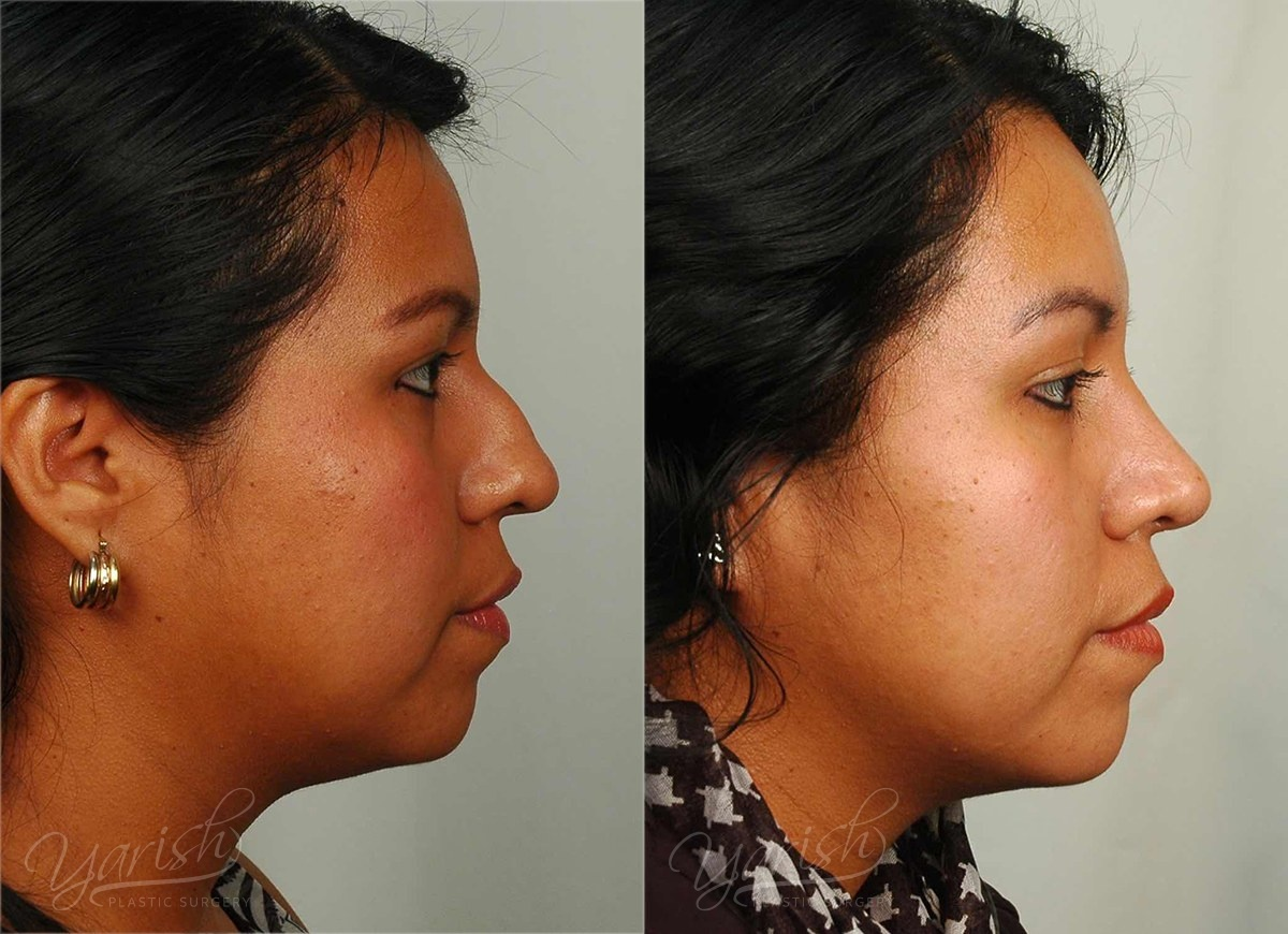 Patient 7 Rhinoplasty Before and After Right Side View