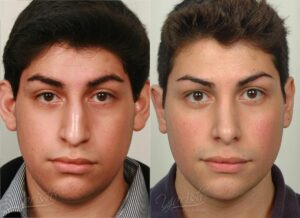 Patient 1 Rhinoplasty Before and After Front View