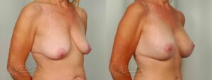 Patient 11 Breast Augmentation with Mastopexy Before and After Right Oblique View