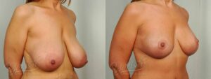 Patient 5 Breast Reduction Before and After Right Oblique View