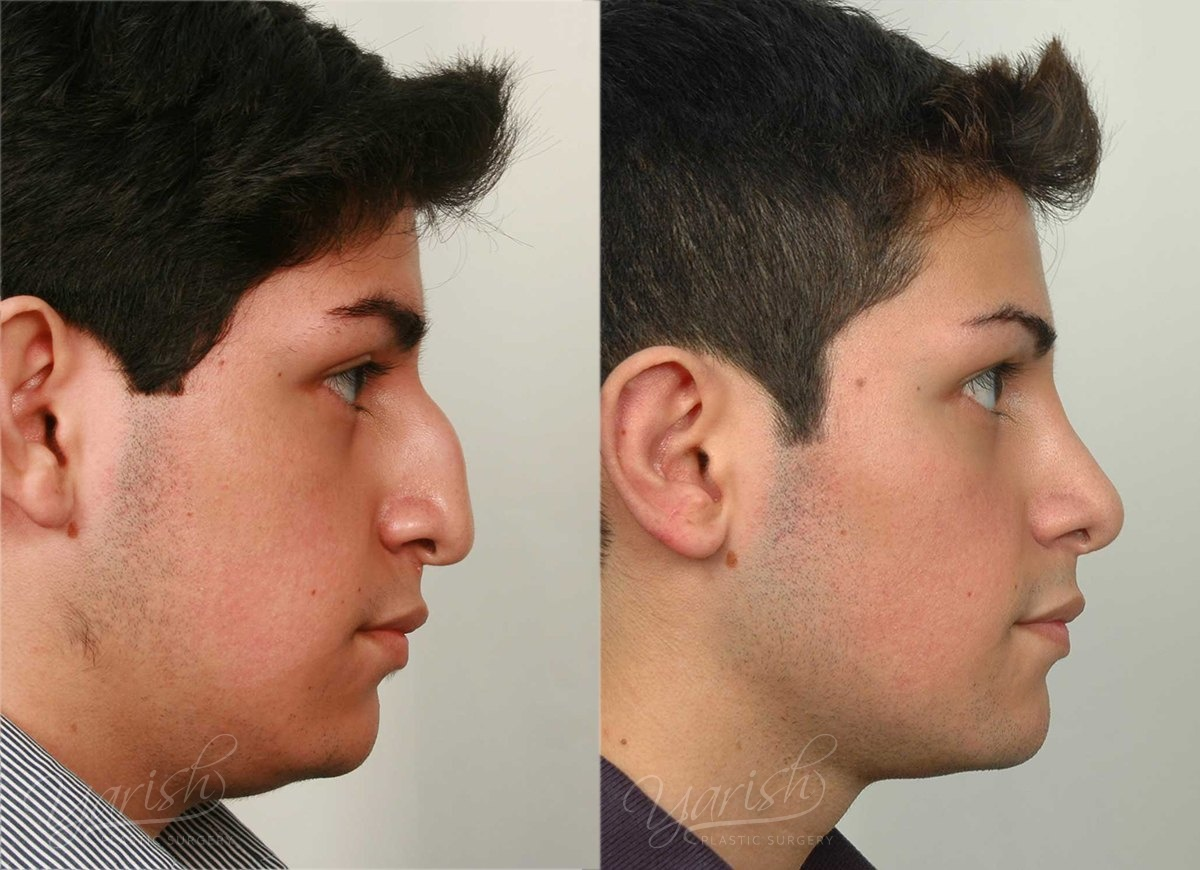 Patient 1 Rhinoplasty Before and After Right Side View
