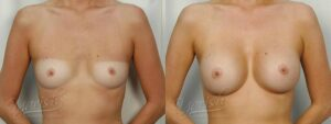 Patient 12 Breast Augmentation Before and After Front View