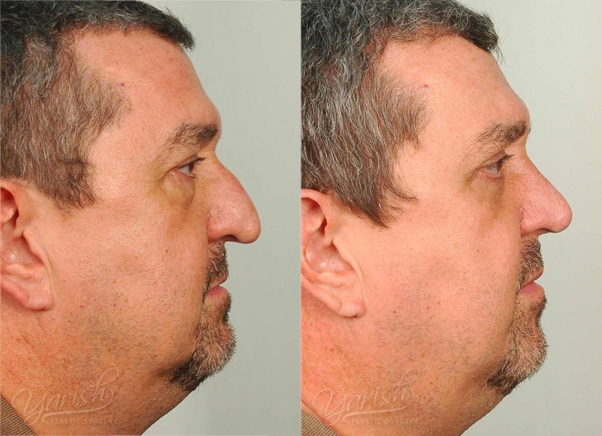Patient 19 Rhinoplasty Before and After Right Side View