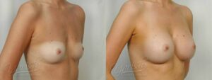 Patient 12 Breast Augmentation Before and After Right Oblique View
