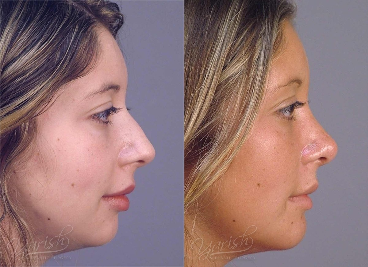 Patient 16 Rhinoplasty Before and After Right Side View