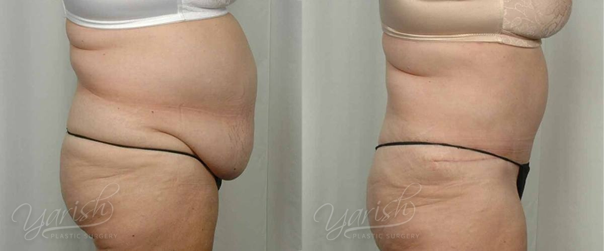 Patient 23 Tummy Tuck Before and After Right Side View