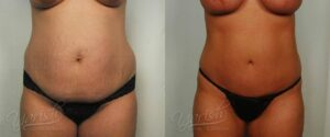 Patient 21 Liposuction Before and After Front View