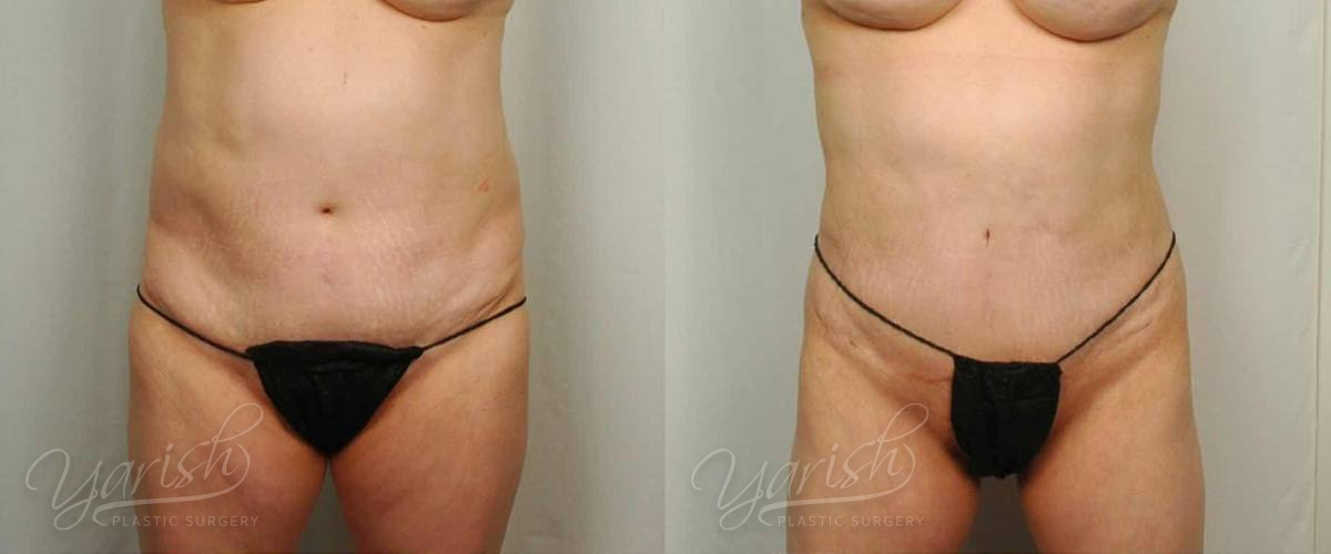 Patient 22 Liposuction Before and After Front View