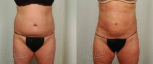 Patient 23 Liposuction Before and After Front View
