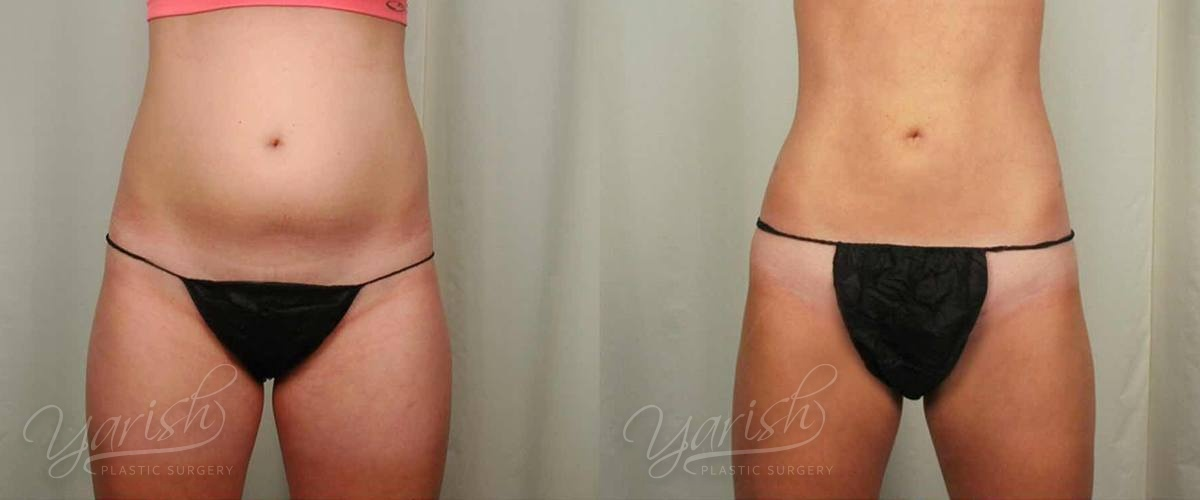 Patient 24 Liposuction Before and After Front View