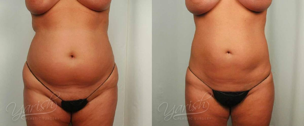 Patient 25 Liposuction Before and After Front View