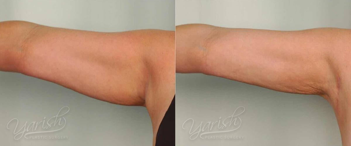 Patient 26 Liposuction Before and After Front Right Arm View
