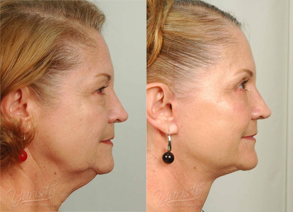 Patient 34 Face Lift and Neck Lift Before and After Right Side View