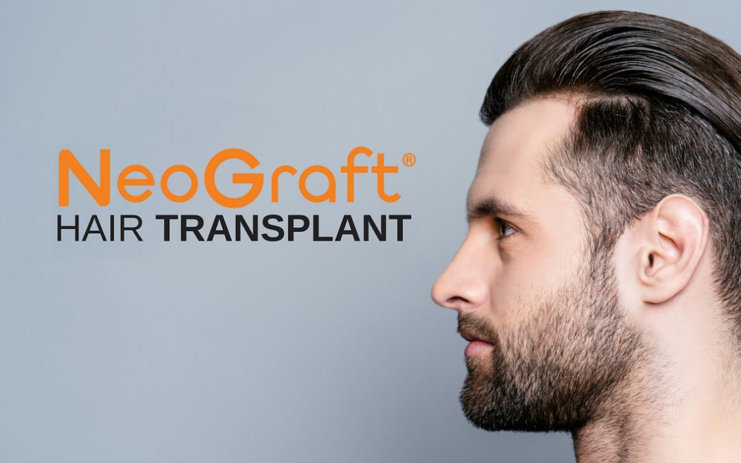 NEOGRAFT Advertisement Graphic with Man with Full Head of Hair