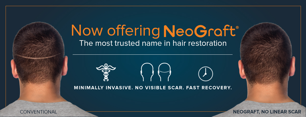 Now Offer NeoGraft Website Banner