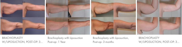 Brachioplasty Results Timelapse Comparison
