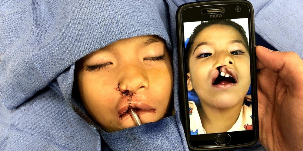 Before and After Surgical Comparison of a Young Boy with a Cleft Lip