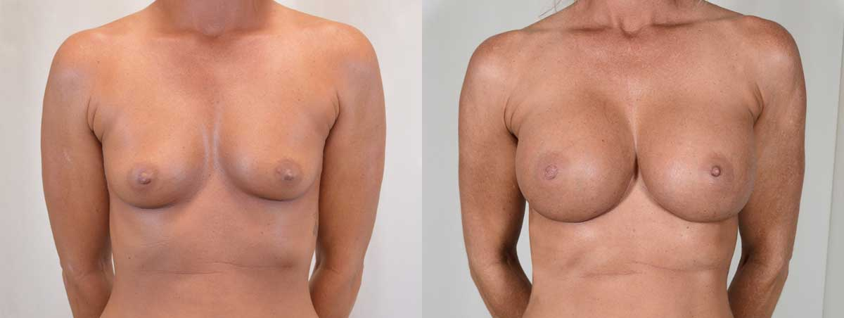 Patient 8 Breast Augmentation Before and After Front View