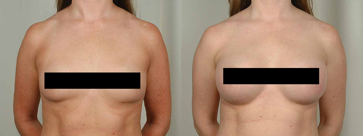 yarish_plasticsurgery_houston_censored__0000_breastaugmentation