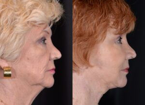 yarish_plasticsurgery_houston_fattransfer_56184-2