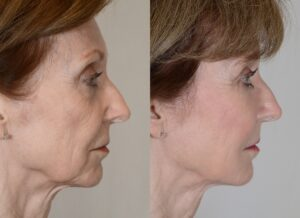 yarish_plasticsurgery_houston_fattransfer_62215-2