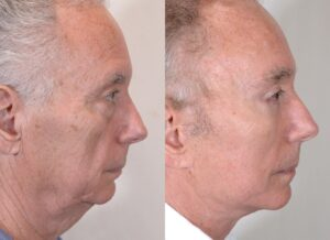 yarish_plasticsurgery_houston_fattransfer_62303-2