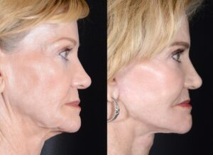 yarish_plasticsurgery_houston_fattransfer_63424-2