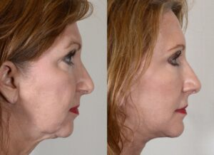 yarish_plasticsurgery_houston_fattransfer_63621-2